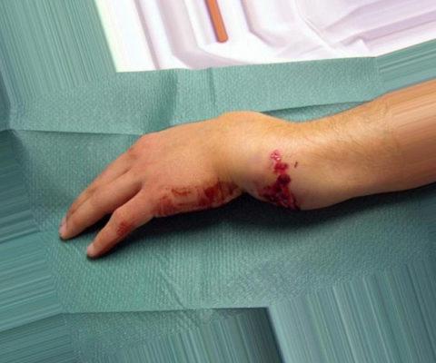 Осложненные формы перелома кисти руки и способы их эффективного лечения