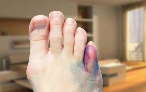 Основные причины повреждения целостности фаланги мизинца на ноге
