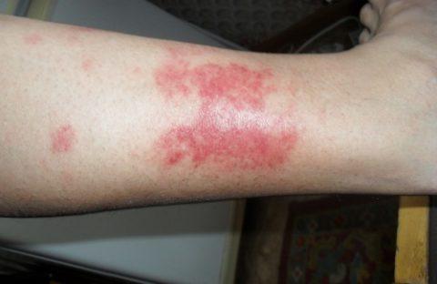 Особенности образования подкожных гематом из-за сильного удара ноги