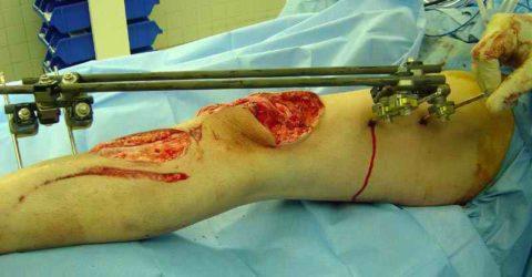 Особенности проведения оперативного вмешательства при нарушении целостности колена