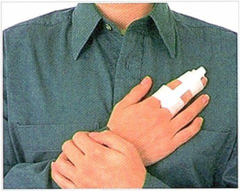 Особенности срастания трещины кости фаланги пальца кисти руки