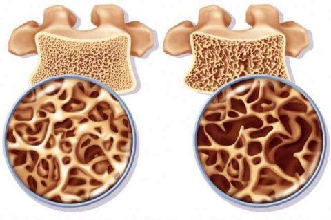 Остеопения и остеохондроз