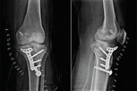 Остеосинтез перелома медиального мыщелка большеберцовой кости
