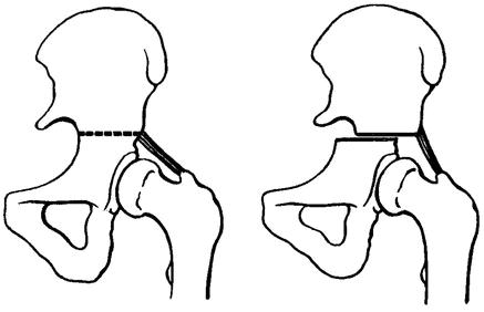 Остеотомия тазовых костей