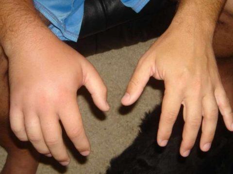 Отечность руки после повреждения целостности структурной ткани