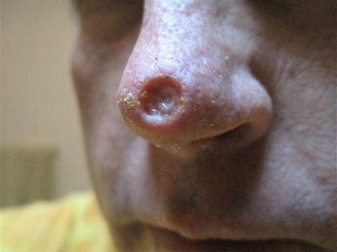Отслоение шарика на кончике носа