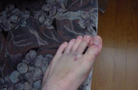 Падение тяжести на ногу как механизм повреждения мизинца