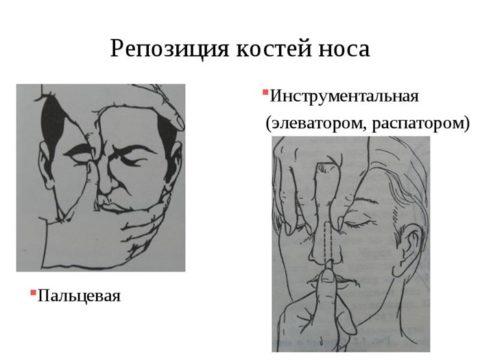 Пальцевая и инструментальная репозиция костей