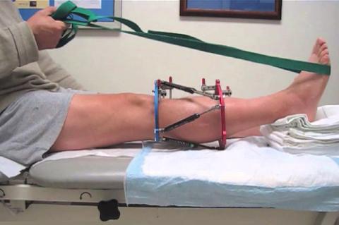Пассивное движение в голеностопном суставе доступно с помощью ремня