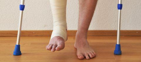 Передвижение пациента по палате с помощью костылей в реабилитационном периоде. Повреждённая конечность перемотана эластичным бинтом.