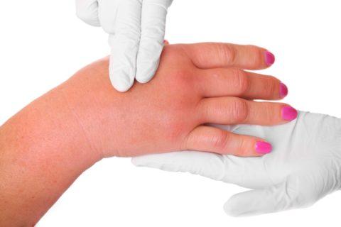Перелом характеризуется быстрым распространением отека на всю область предплечья и кисти