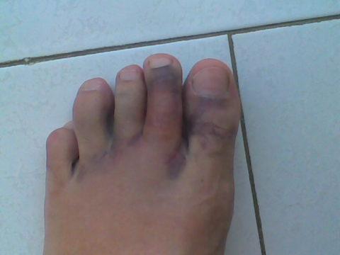 Перелом нескольких пальцев стопы