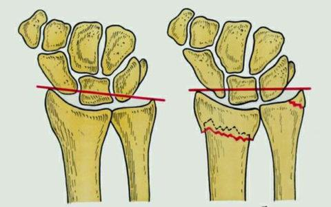 Перелом шиловидного отростка лучевой кости