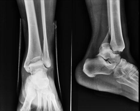 Переломовывих голеностопа на рентгене