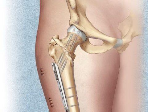 Пластины при переломе тазобедренного сустава