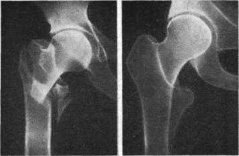 Подтверждение повреждения бедренной кости с помощью рентгенологического снимка.
