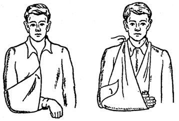 Подвешивание руки с помощью косынки