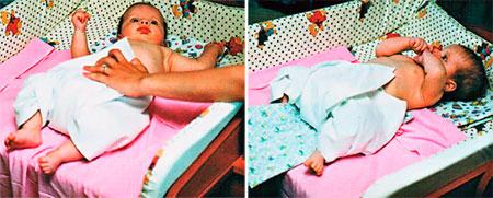 Положение ног физиологично для малыша