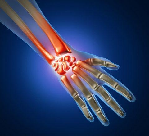 Повреждение костей в области запястья.