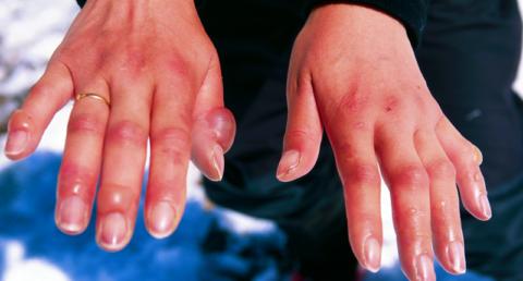 Повреждение кожи рук на холоде