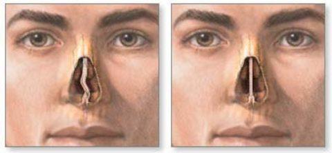 Повреждение перегородки носа