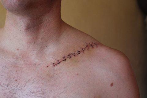 Правильно наложенные швы после операции