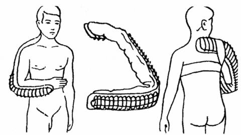 Правильное наглядное наложение шины Крамеля для транспортировки пациента с травмированием.