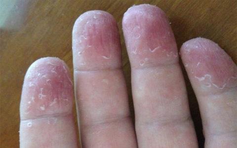 При обморожениях 1 - 2 степени могут образовываться шелушащиеся области на коже.