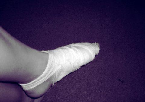 При отказе пациента приобретать иммобилизирующее устройство, ему накладывают гипс на всю стопу. Срок носки повязки до 30 дней.