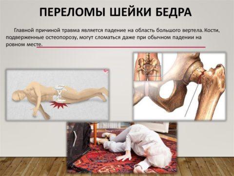 Причины получения травмы.