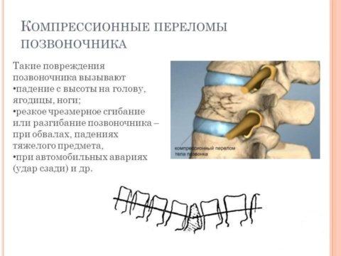 Причины, вызывающие видоизменение позвоночного столба с последующим проведением операции.