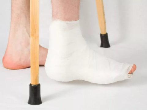 Продолжительность ношения фиксирующей гипсовой повязки при травмированной лодыжке