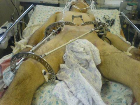Процедура скелетного вытяжения при сломанных тазовых костях в организме человека