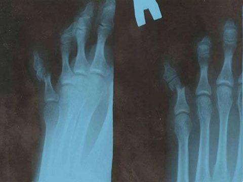 Проведение рентгеновского снимка для постановки диагноза перелома пальца на ноге