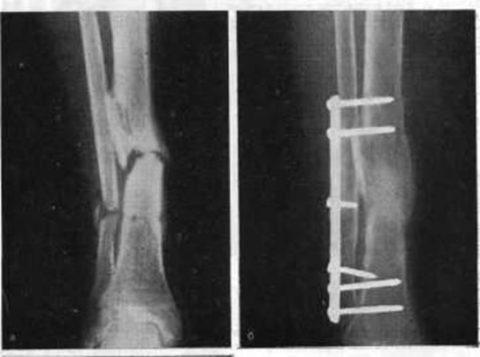 Проведенная репозиция на рентгеновском снимке для фиксации костных отломков