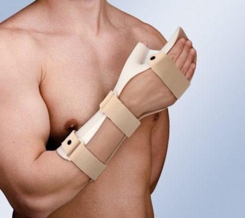 Распространенная лечебная методика при переломах кисти верхней конечности в организме