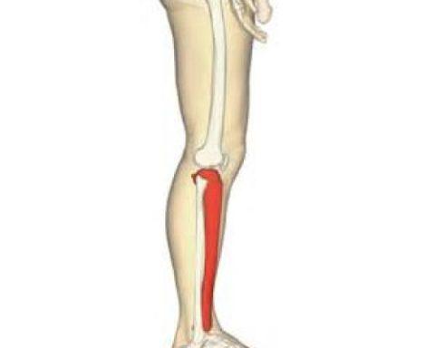 Распространенные лечебные методики для восстановления целостности берцовой кости