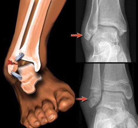 Распространенные причины нарушенной целостности малой берцовой кости
