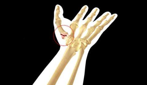 Растрескивание кости фаланги пальца при интенсивном ударе в область кисти