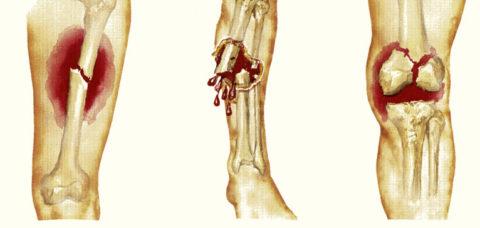 Различные виды сломанной берцовой кости в соответствии с классификацией