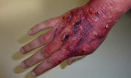 Разрушение эпидермиса и дермы