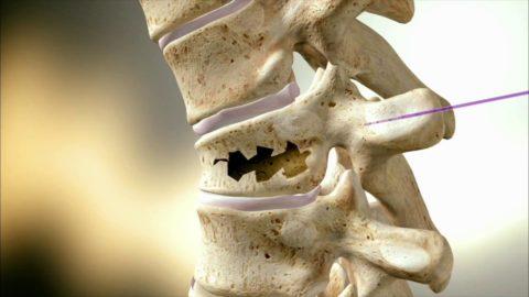 Разрушение костной ткани фрагмента позвоночника.