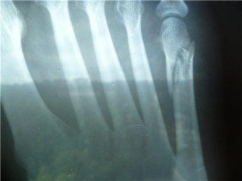 Рентгенологический снимок сломанной фаланги мизинца на ноге
