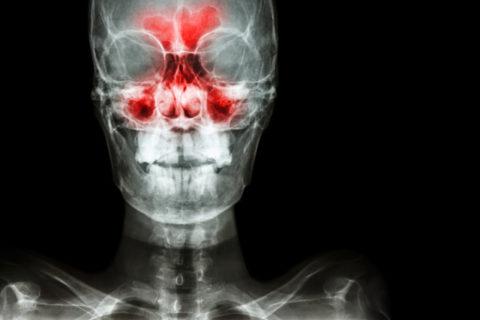 Рентгеноскопическое исследование пазух носа