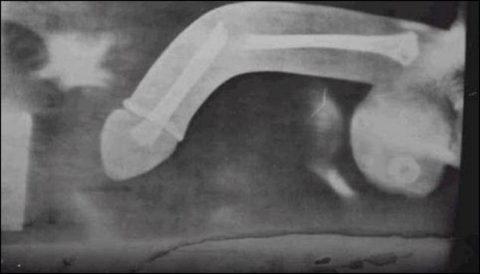 Рентгеновский снимок мужского сломанного полового члена
