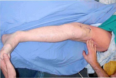 Ротация левой конечности наружу. Пациент находится в лежачем положении, осмотр проводит травматолог в лечебном учреждении.
