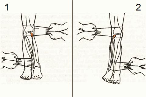 Ручная репозиция перелома внутреннего (1) и наружного (2) мыщелков большеберцовой кости