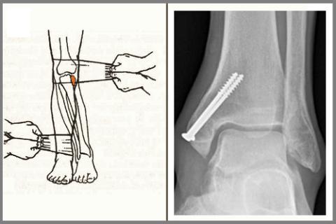 Ручная репозиция внутреннего мыщелка большеберцовой кости и остеосинтез внутренней лодыжки
