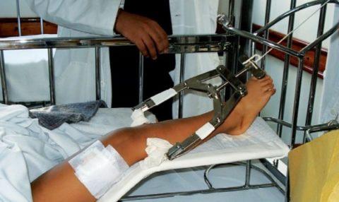 Скелетное вытяжение при травмировании большой берцовой кости.