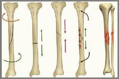 Сломы диафизов берцовых костей S82.2